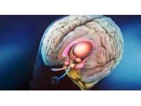 Le cerveau en question à Lyon