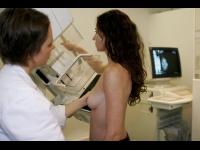 HCL: un numéro unique pour les mammographies