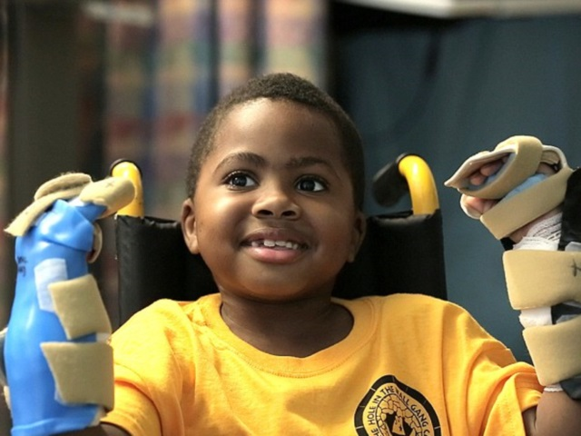 15 ans après Lyon, la première greffe des mains effectuée sur un enfant aux Etats-Unis