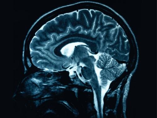 """Des chercheurs lyonnais ont identifié la """"voix"""" du cerveau"""