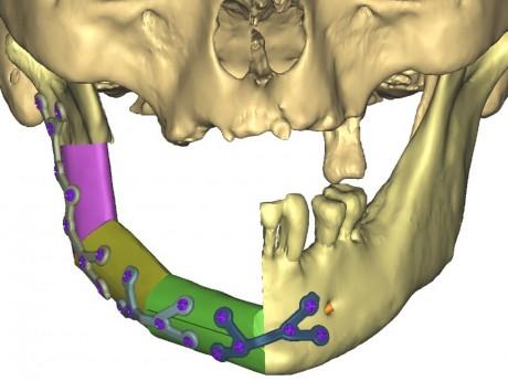 Reconstruction d'une mandibule via la modélisation 3D - Hospices Civils de Lyon