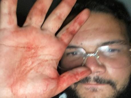 Sadek se prenant en photo avec le sang de Bassem sur les mains - DR