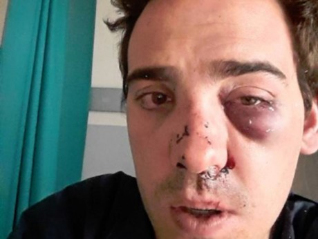Alexandre, suite à son agression le 20 juin - DR