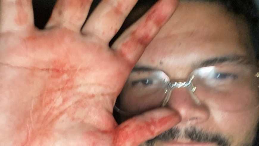 Un an après l'agression de Bassem à Vénissieux, Sadek toujours libre