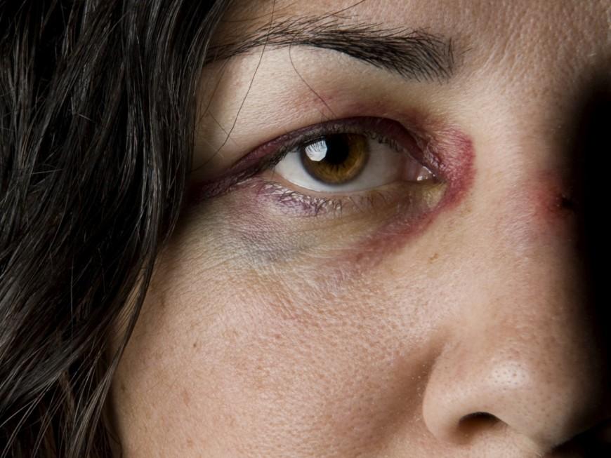 Violences familiales à Lyon : davantage d'appels à la police mais moins de plaintes