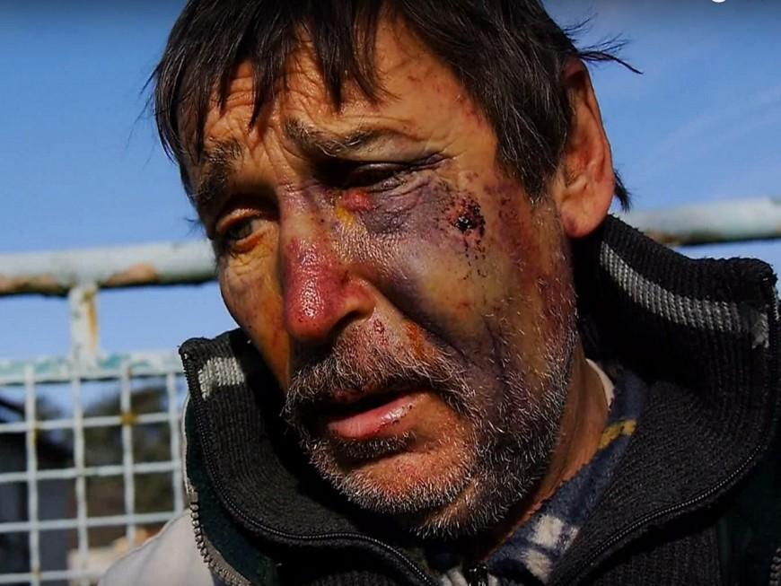 Philippe Layat, l'agriculteur opposant au Grand Stade, tabassé chez lui