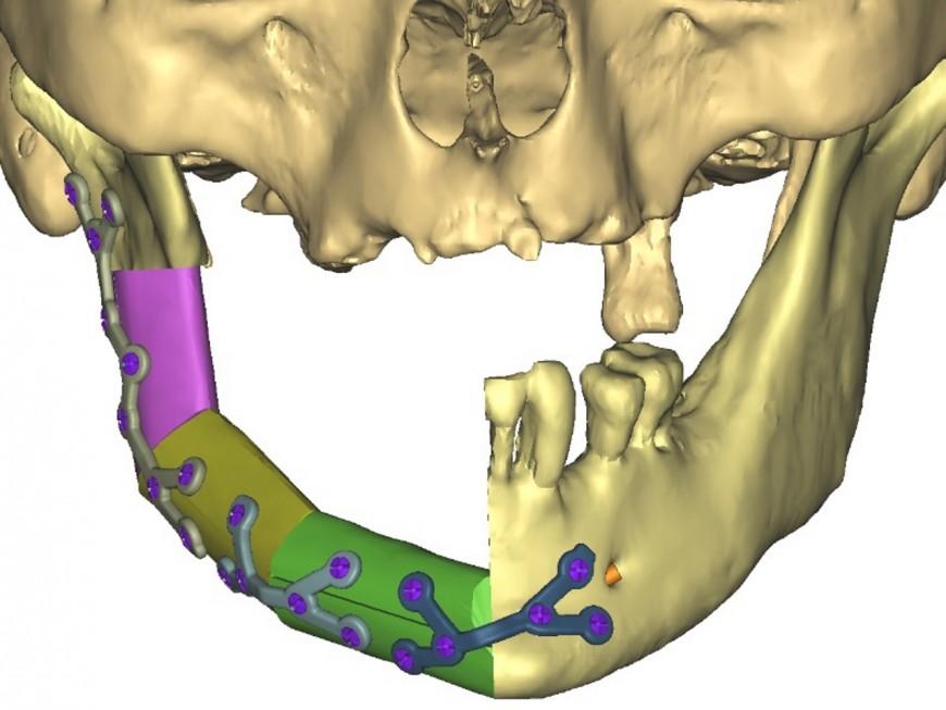 Hôpital de la Croix Rousse : quand l'impression 3D sert à la reconstitution de la mâchoire